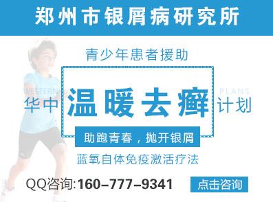 郑州市治疗牛皮癣哪家好