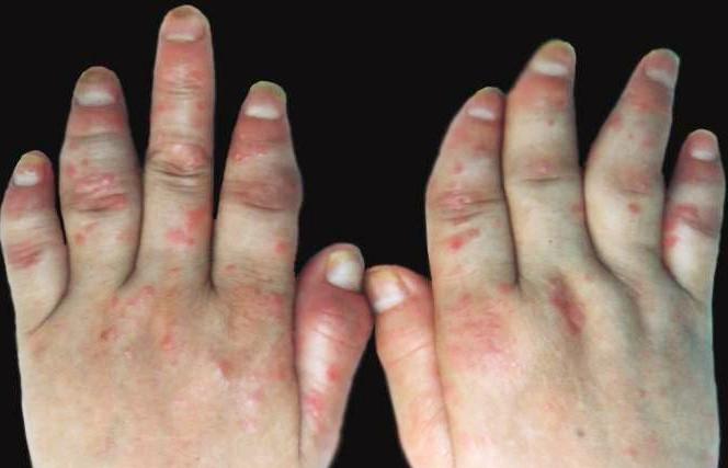 手部牛皮癣如何治疗