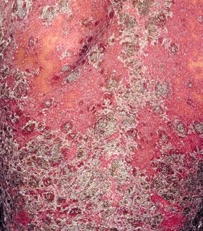 牛皮癣患者怎么有效止痒