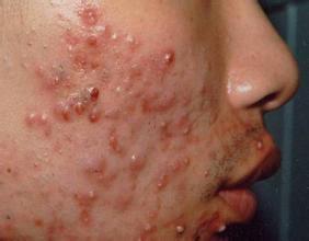 牛皮癣患者如何护理脸部皮损