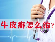 郑州牛皮癣治疗医院!